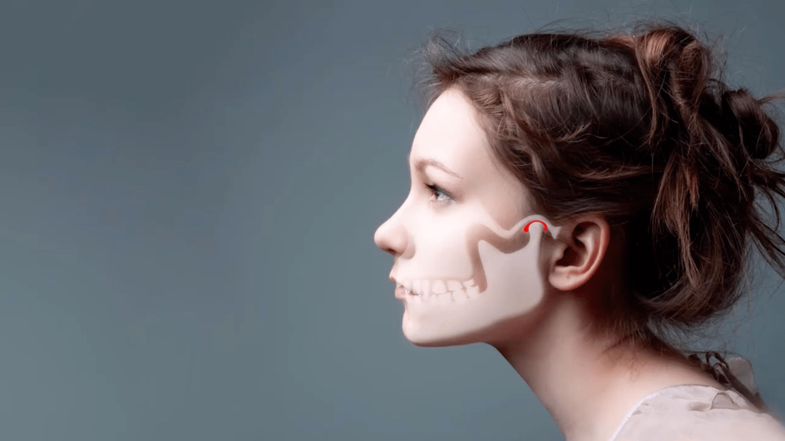 Zahnarztpraxis Dr. Siepen Düsseldorf Kiefergelenkfehlstellung