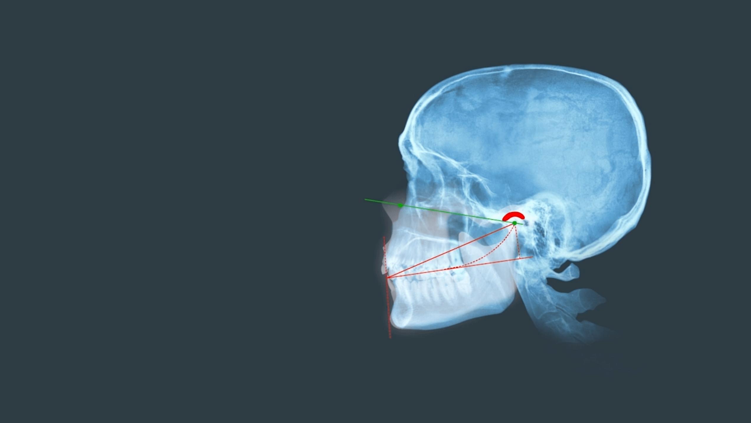 Zahnarztpraxis Dr. Siepen Düsseldorf Kiefergelenkfehlstellung Ursachen